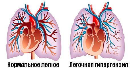 легечная гипертензия