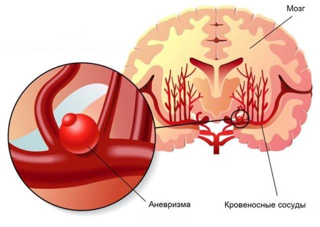 Аневризма аорта
