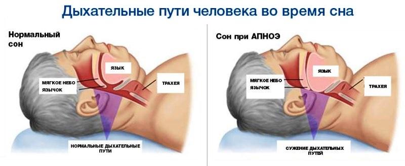 Апноэ при ночной гипертонии