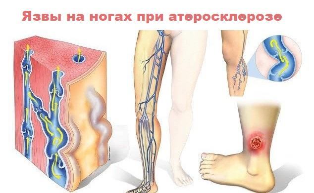 Язвы на ногах при атеросклерозе