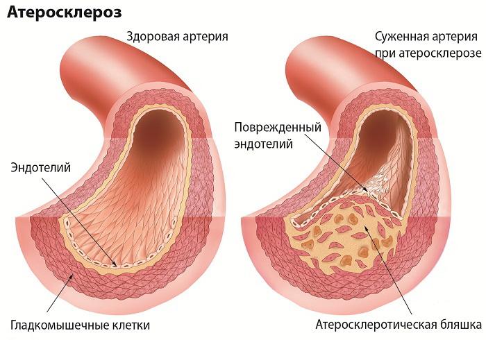Атеросклероз - причина повышенного артериального давления