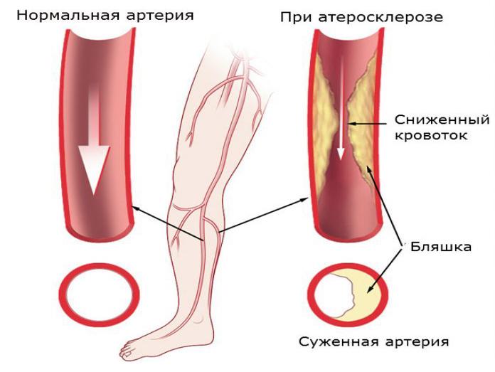 Атеросклероз у курильщиков