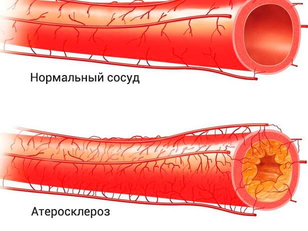 Атеросклеротические поражения