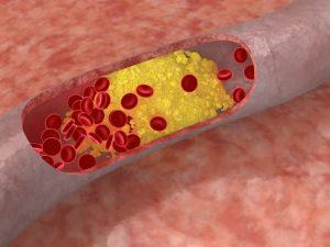 Атеросклероз и холестерин