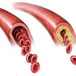 Атеросклероз сосудов шеи
