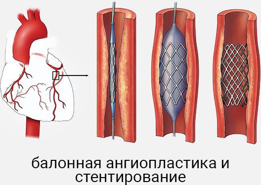Баллонная ангиопластика и стентирование
