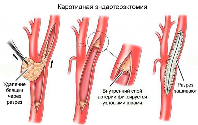 Эндартерэктомия
