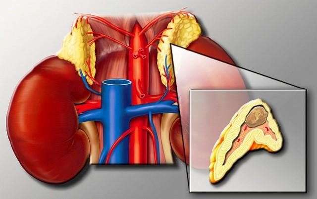 Что такое феохромоцитома
