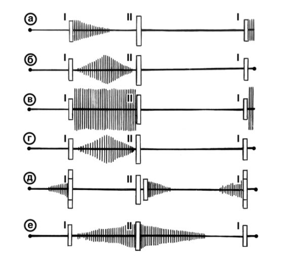 фонокардиография