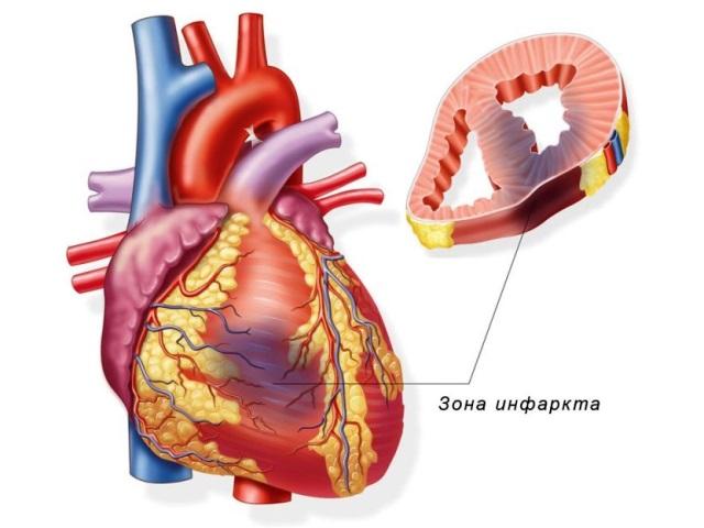 Инфаркт миокарда как следствие ночной гипертонии