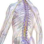 Инсульт спинного мозга