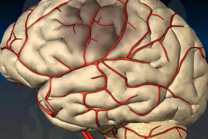 Ишемия мозга у новорожденного
