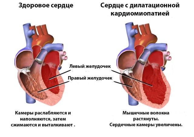 Кардиомиопатия