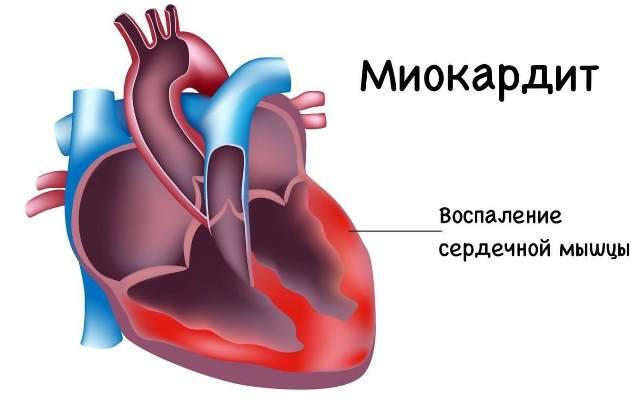 Миокардит - причина гипотонии