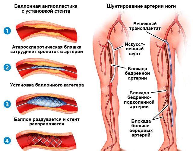 Стентирование и шунтирование сосудов ног