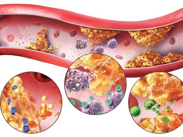 Статины при атеросклерозе