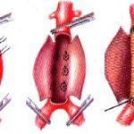 Аневризма аорты операция
