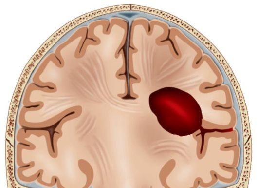 Внутримозговая гематома
