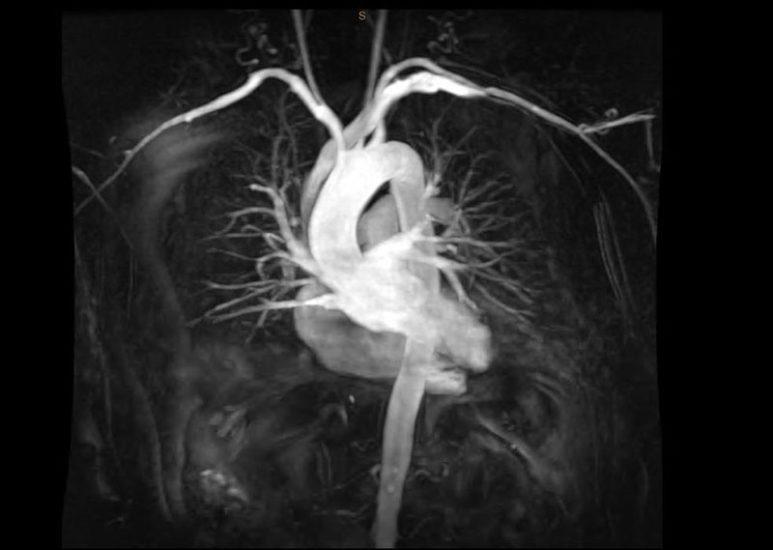 МРТ сердца с контрастированием