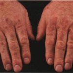Ревматоидный васкулит