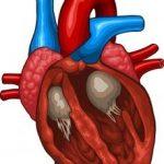 аритмогенная дисплазия правого желудочка