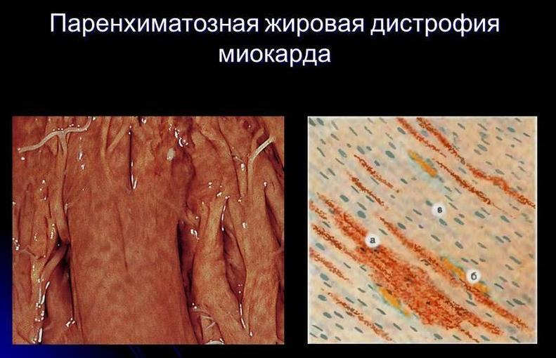 жировая паренхиматозная дистрофия
