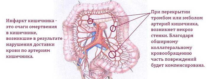 Инфаркт кишечника