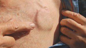 кардиостимулятор под кожей