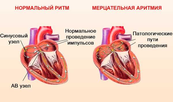 кардиостимулятор сердца аритмия