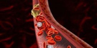 нарушение микроциркуляции