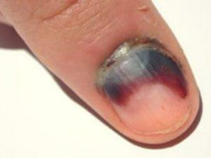 кровоизлияние под ноготь