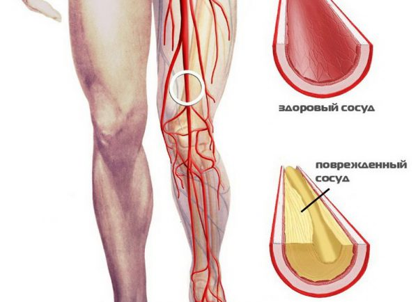 окклюзия бедренной артерии