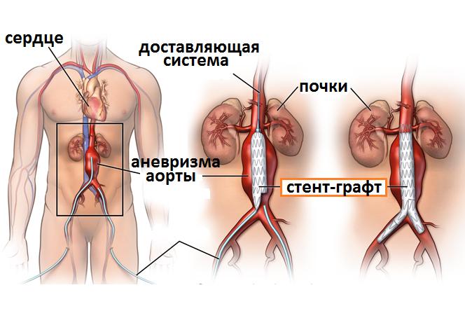операция аневризмы аорты