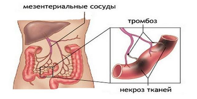 причины инфаркта кишечника