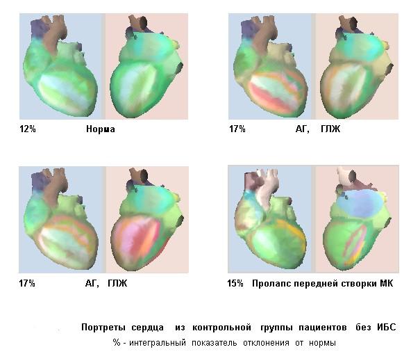 результат кардиовизора
