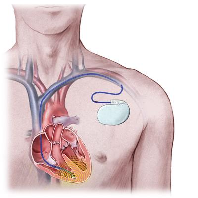 сердце и ЭКС