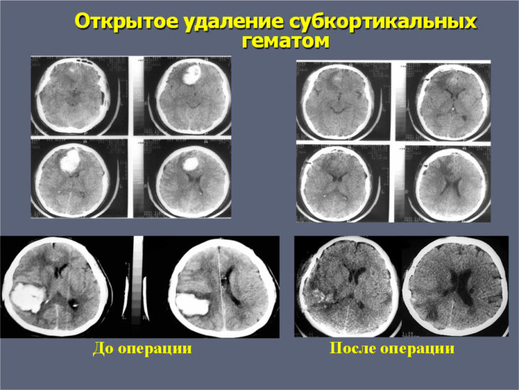 снимок гематомы