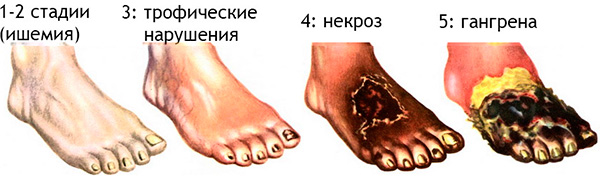 стадии окклюзии