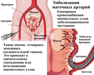 суть эмболизации маточных артерий