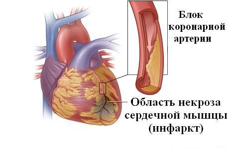 тигровое сердце