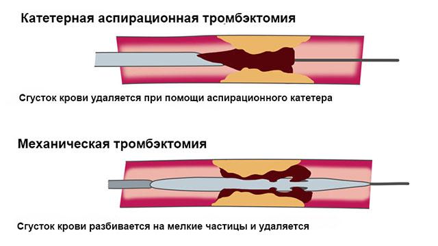 хирургическое удаление тромба