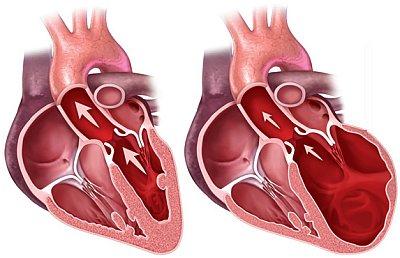сердце в норме и при кардиомиопатии
