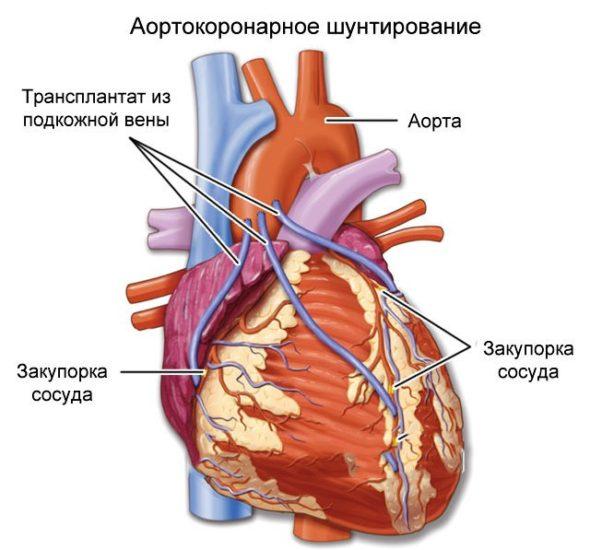 Аортокоронарное шунтирование при лечении постинфарктной стенокардии
