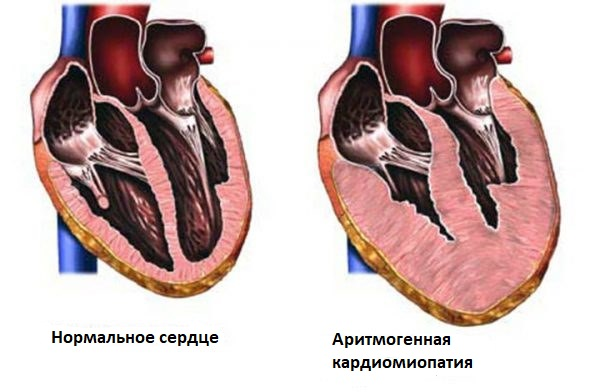 Аритмогенная кардиомиопатия