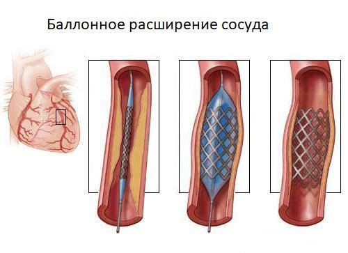 Баллонное расширение артерии