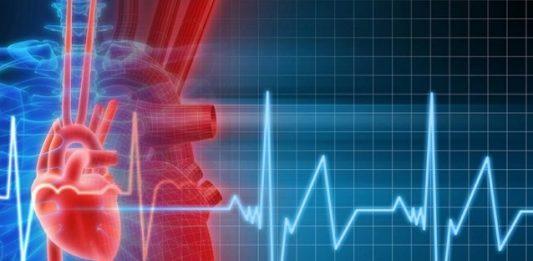 Безболевая ишемия миокарда