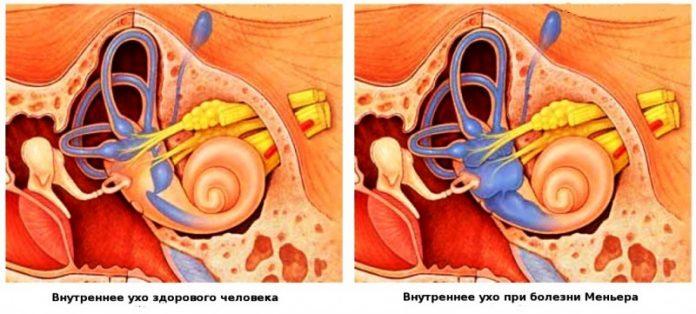 Препарат от головокружения при болезни меньера