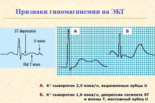 Гипомагниемия на ЭКГ