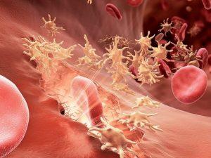 Лимфангит лечение