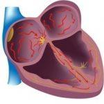 Народное лечение мерцательной аритмии